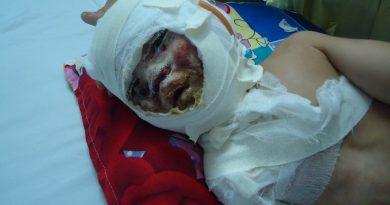 bé trai bị bỏng nặng, bé trai bị bỏng nặng cầu xin cứu giúp