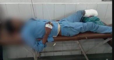 Bệnh nhân gối đầu trên phần chân bị cắt của mình